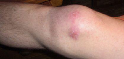 Condromalacia rotuliana, lesiones de rodilla