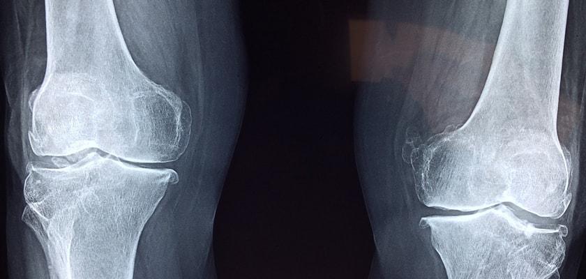 ¿Cómo frenar el desgaste de los cartílagos de la rodilla si eres runner?, radiografia